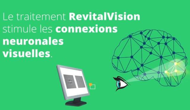 """RevitalVision : mieux voir avec des """"exercices physiques"""" pour les yeux !"""