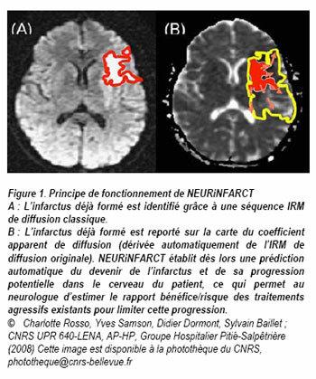AVC : une nouvelle technique d'IRM pour prévoir l'évolution des infarctus cérébraux