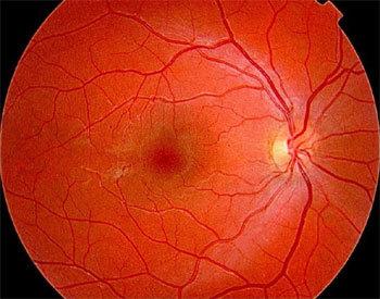 DMLA : le parcours du patient atteint de cette maladie oculaire