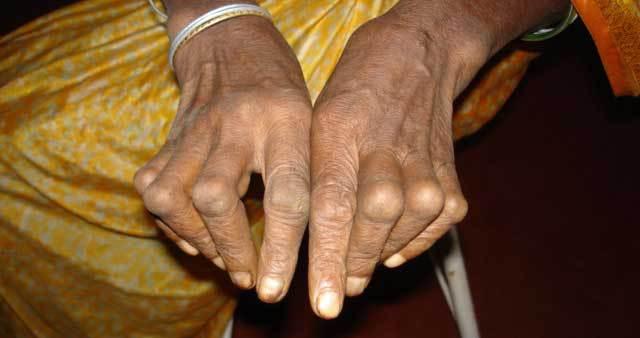 Arthrose : des solutions pour cette maladie dégénérative du cartilage