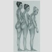 Ostéoporose : les femmes malades préfèrent prendre un comprimé par mois
