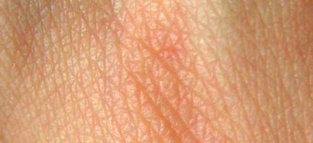 Vieillissement de la peau : le rôle de la molécule CD98hc
