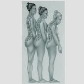 Ostéoporose, parlons-en tous les mois ! : une campagne pour vivre debout jusqu'à 100 ans