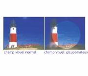 Glaucome : Campagne Nationale d'Information et de Dépistage du 6 avril au 5 mai 2007