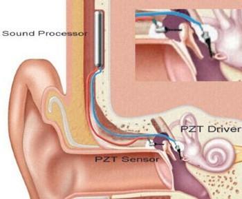 Traitement de la surdité : un nouvelle prothèse auditive totalement implantable