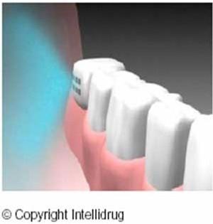 Une dent qui soigne et qui lutte contre la maladie d'Alzheimer