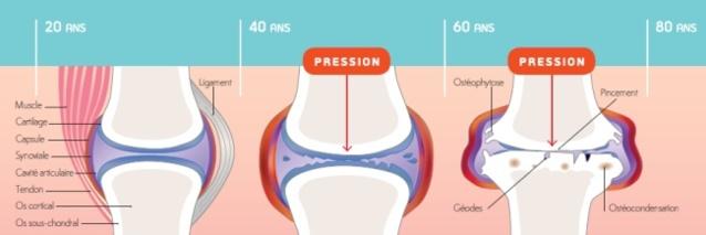 Douleurs articulaires et surpoids : le point avec le docteur Bertrand Moura