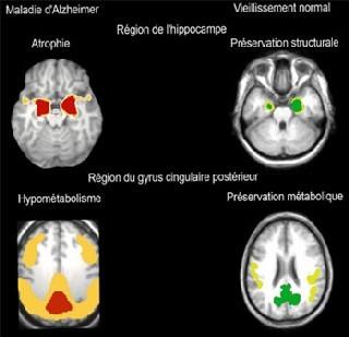 Les régions cérébrales les plus atteintes sur le plan structural et fonctionnel dans la maladie d'Alzheimer (en rouge, à gauche) correspondent aux régions les mieux préservées au cours du vieillissement normal (en vert, à droite).