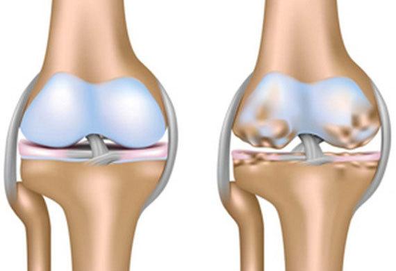 genou sain à gauche et genou avec arthrose à droite