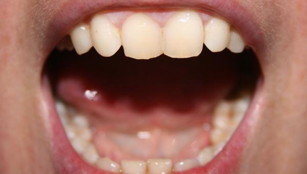 La bouche révélatrice de l'état de santé général d'une personne...