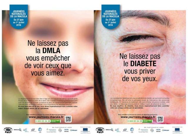 Ne laissez pas les maladies de la macula vous priver de vos yeux !