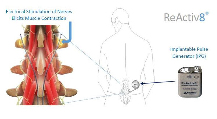 La lombalgie : un nouveau dispositif pour soulager la douleur
