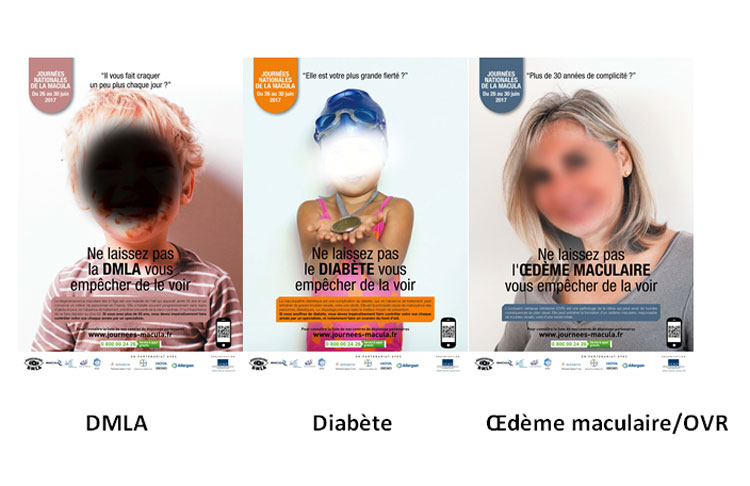 JNM : le point sur la maculopathie diabétique avec l'association Macula