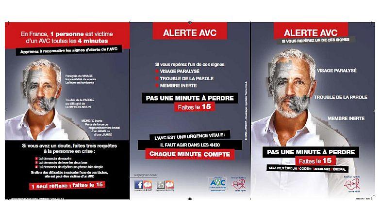Alerte AVC : savoir faire face à l'urgence