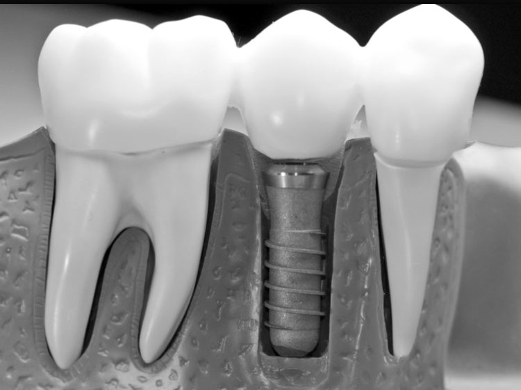 Trente ans d'implants : quelles perspectives ?