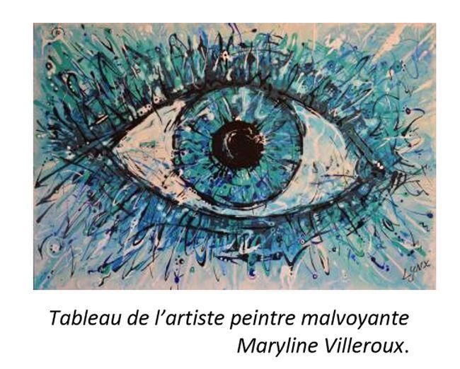 Semaine mondiale de la prévention du glaucome : l'art de voir ce qui nous échappe