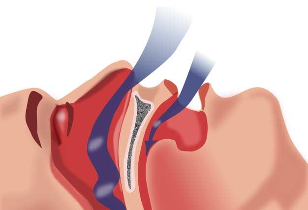 Apnée du sommeil : le rôle du chirurgien-dentiste
