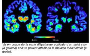 Alzheimer : l'épaisseur de la matière grise, témoin précoce de la maladie