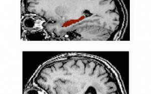 Alzheimer : arrivée d'un logiciel pour mieux diagnostiquer la maladie
